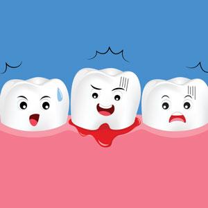 Illustration of bleeding gums