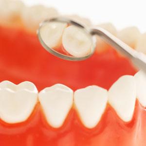 Examining teeth with dental tool