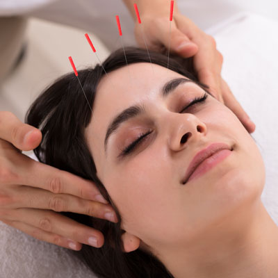 woman with facial acupuncture needles