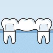 Illustration of dental bridge