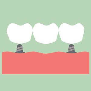 Dental Bridge on Implants Illustration
