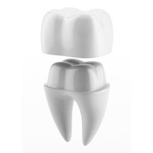 dental crowns illustration