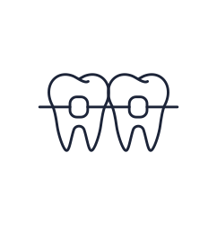 Illustration of teeth with braces