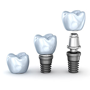 Dental Implants in Munno Para West