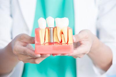 Doctor holding implant model