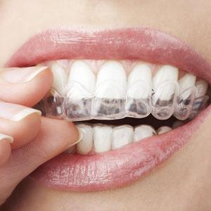 Invisalign clear braces in {PJ}