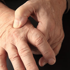 male hands with joing pain