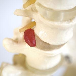 Example of ruptured disc.