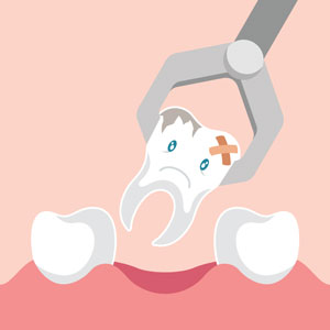 Illustration of tooth extraction
