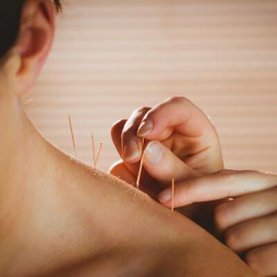 woman receiving needling treatment on shoulders