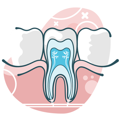 root canal illlustration