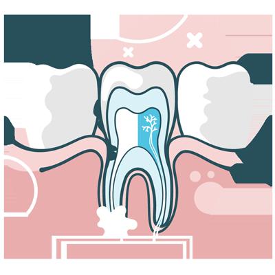 Dental root canal illustration