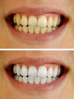 Teeth Whitening Randwick