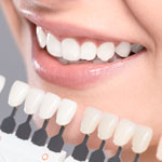 mouth by teeth whitening chart