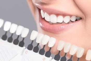 Teeth Whitening Wangaratta