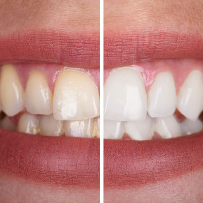 Side by side whitening comparison