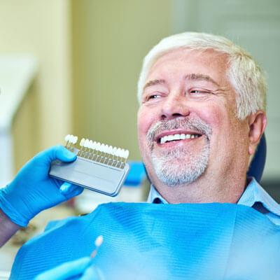 Tooth whitening chart