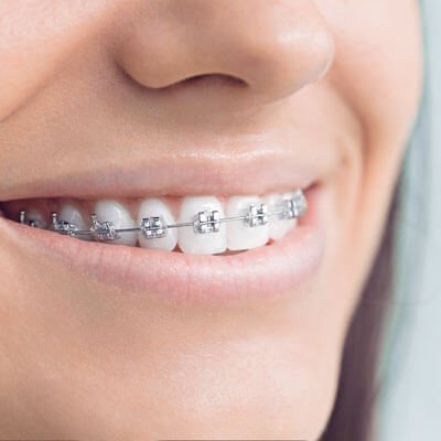 close up of laides mouth with traditional braces
