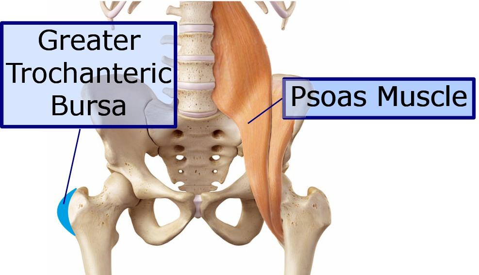 Hip diagram with psoas
