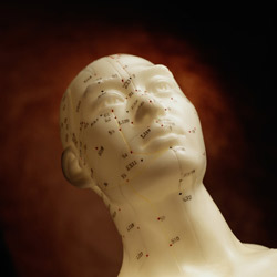 Acupuncture is available at River Chiropractic & Wellness Center in Rocky River
