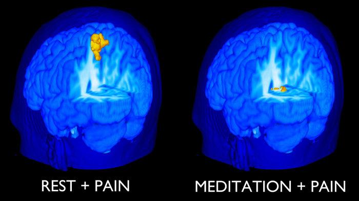meditationvpain_wide-62fcdf2f15f7e32e92692f03bec5a0365d28d5a7-s700-c85