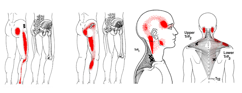 Myofascial pain and Dysfunction
