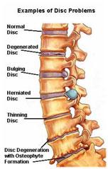 Disc Injuries image