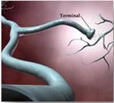 NEUROLOGICAL INJURY