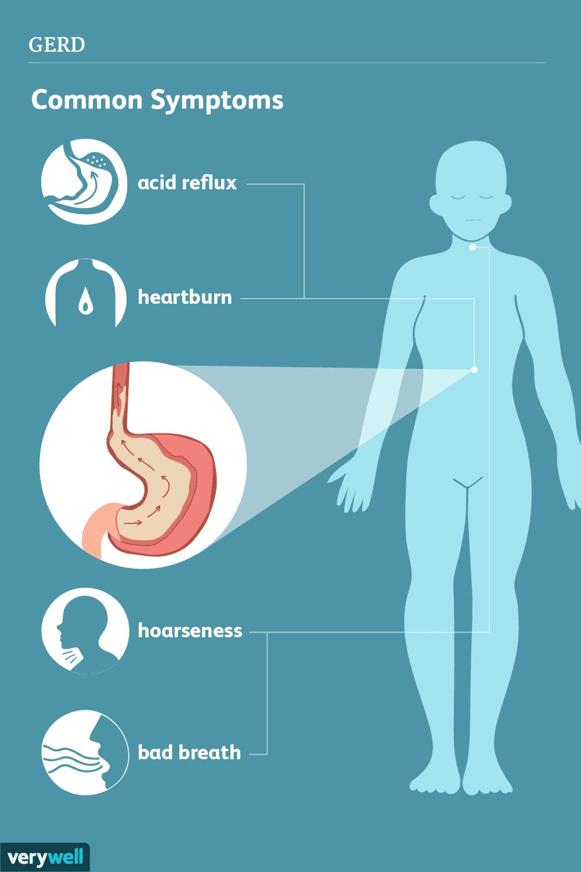 GERD_symptoms-5ae77590119fa80036eb2edf