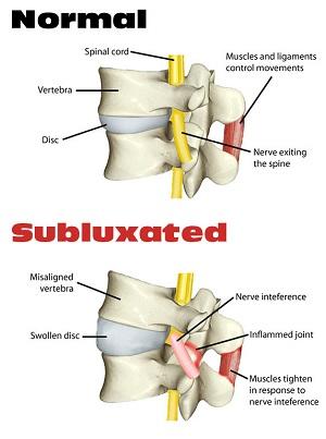 vertebral-subluxation-pic