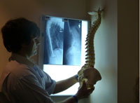 Croydon chiropractor examining x-rays