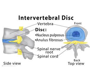 invertebral-disc