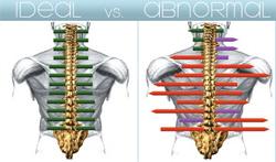 spine scans