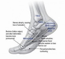 chart of the bones in a foot