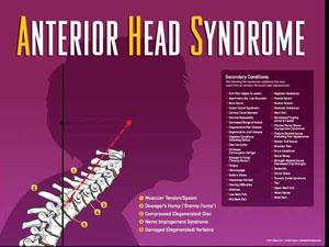Marietta Chiropractor : Anterior Head Syndrome