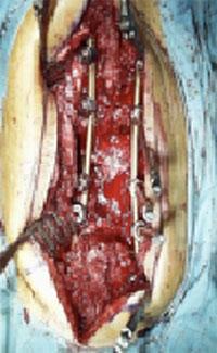 back surgery image