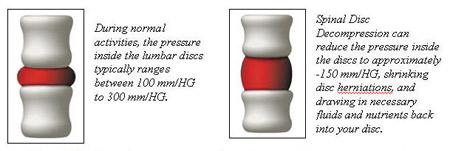 Champlin Chiropractor