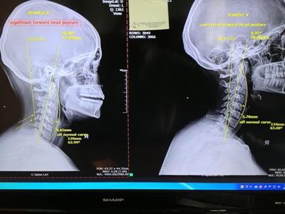 x-ray testimonial