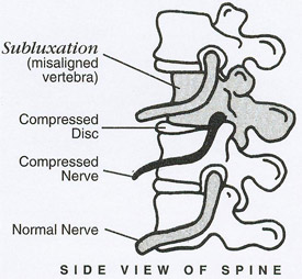 Side view of spine