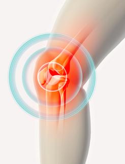 radiating-knee-pain