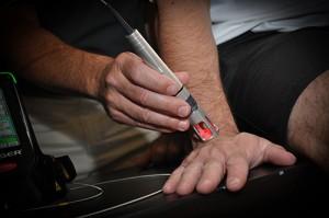K-Laser-Wrist-Treatment