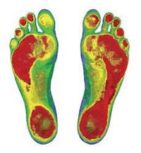 Scans of your feet reveal pressure points, loss of arch and other critical information.