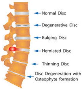 Spinal Decompression Diagram