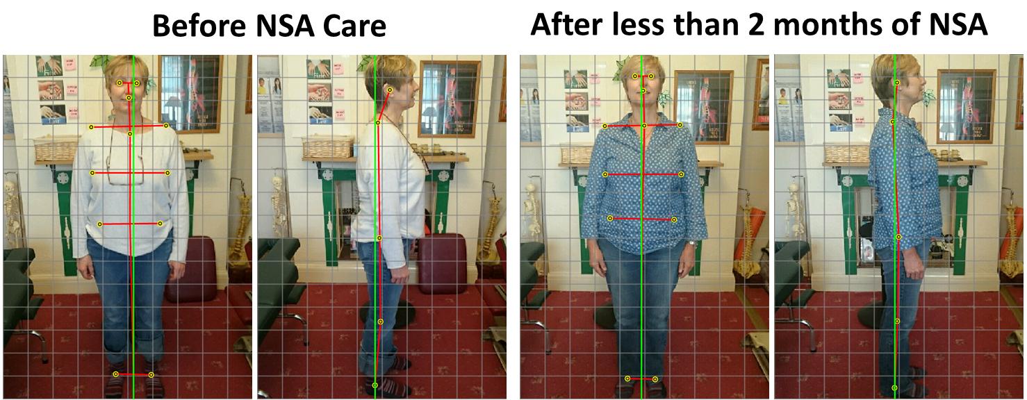Posture-Changes-2332