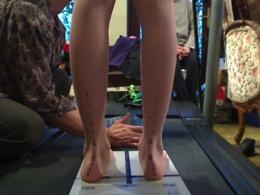 Uncorrected Flat Feet