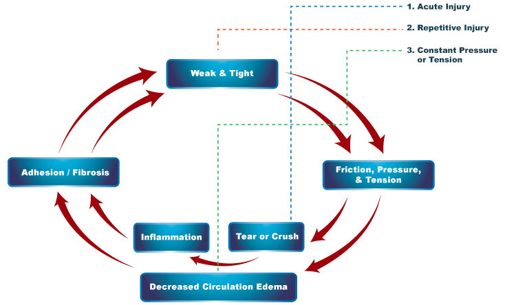 Cumulative Injury Cycle.