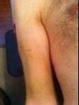 bruise2