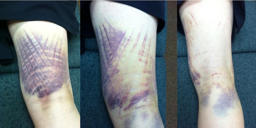 Kinesio Tape timeline on thigh bruise