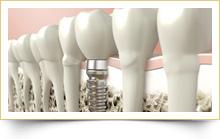 3D Implants