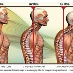 Tech Neck - Chiropractor- Fonke